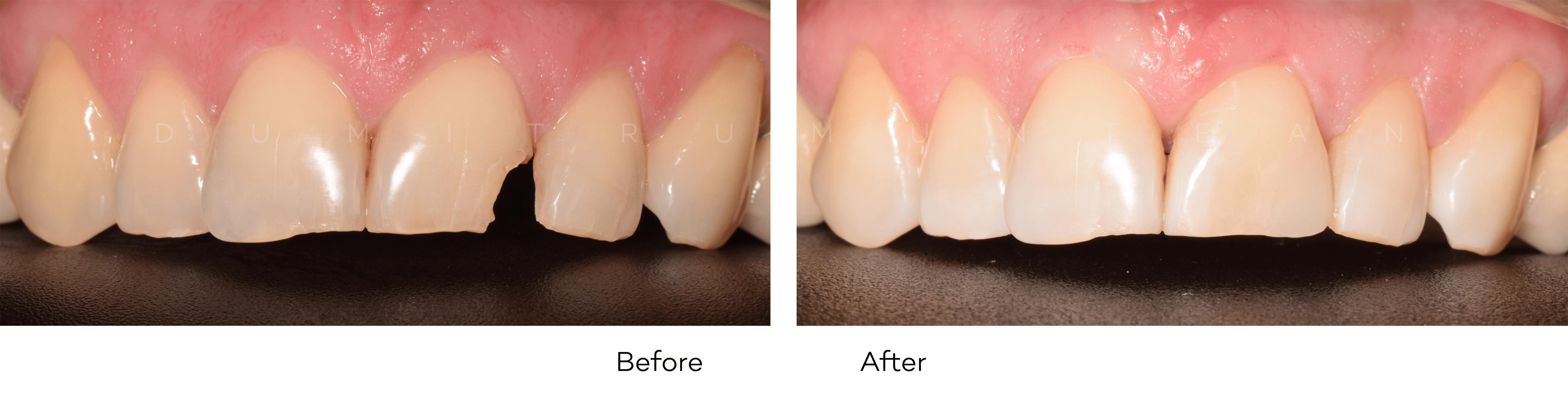 Obturatie (plomba) dinți frontali