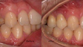 Fractura dentară – recomandare coroana de zirconiu
