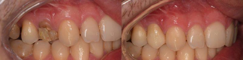 Fractura dentara – recomandare coroana de zicroniu