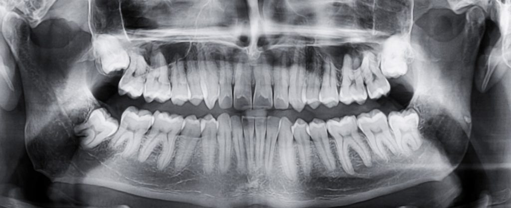 Radiologie dentara doza comparativDumitru Muntean dentist Cluj Manastur Plopilor