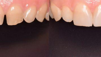 Fațetele dentare din compozit