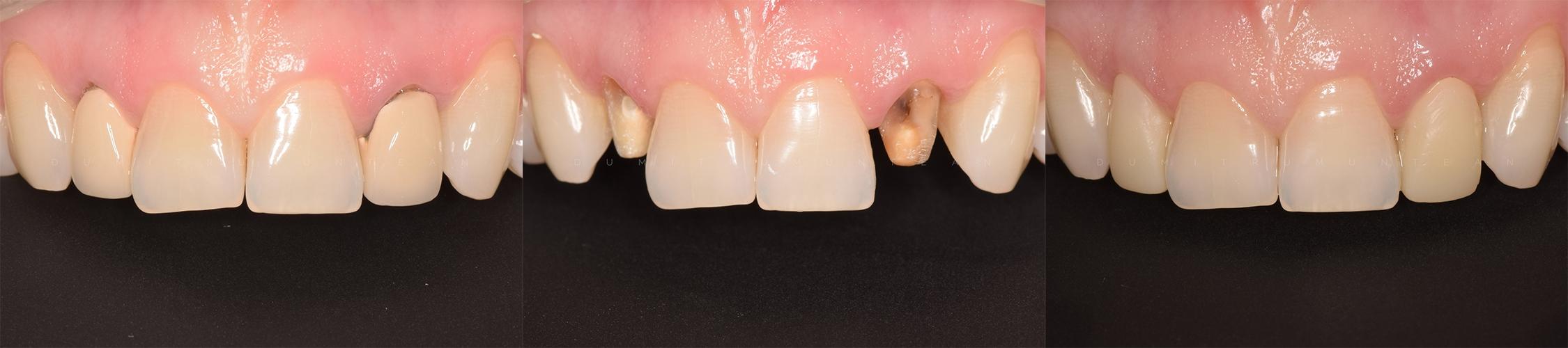 coroane integral ceramice dumitru muntean dentist cluj 15