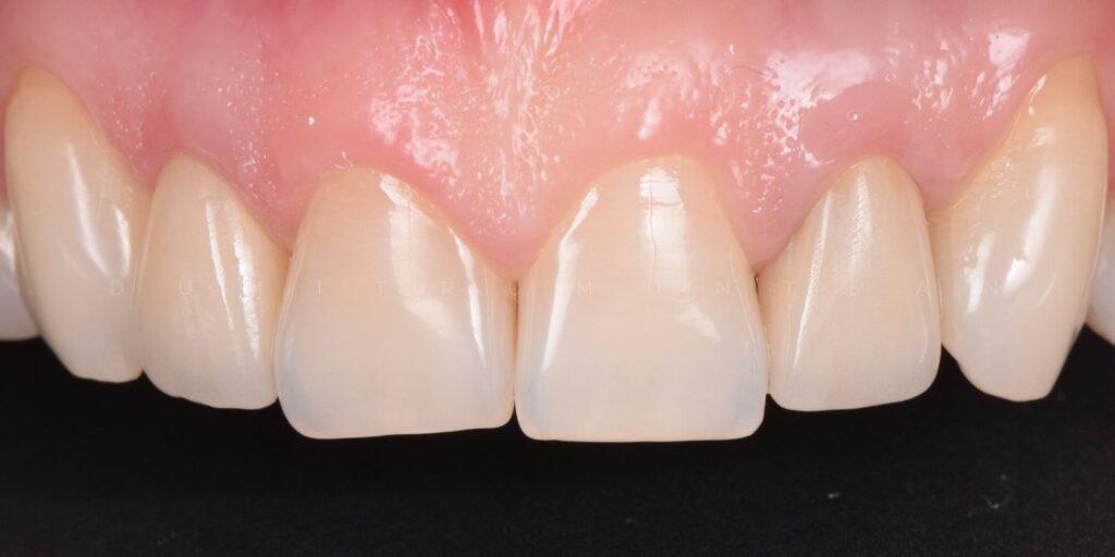 coroane integral ceramice dumitru muntean dentist cluj 1 (2)