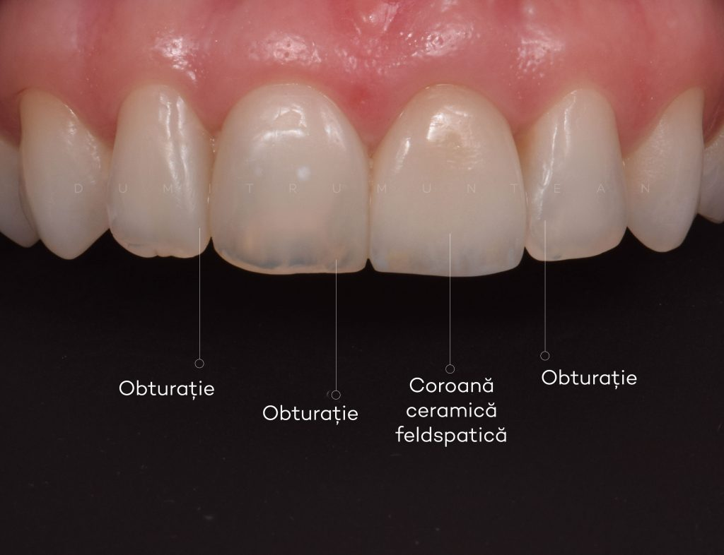 Dumitru Muntean - obturatie dentist cluj