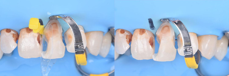 Fațete dentare din material compozit - dentist Cluj - dr. Dumitru Muntean