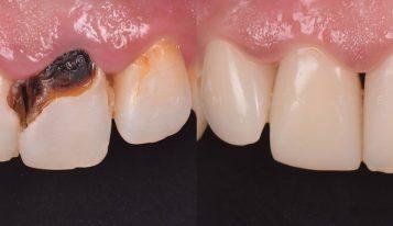 Fațete dentare din compozit – 2