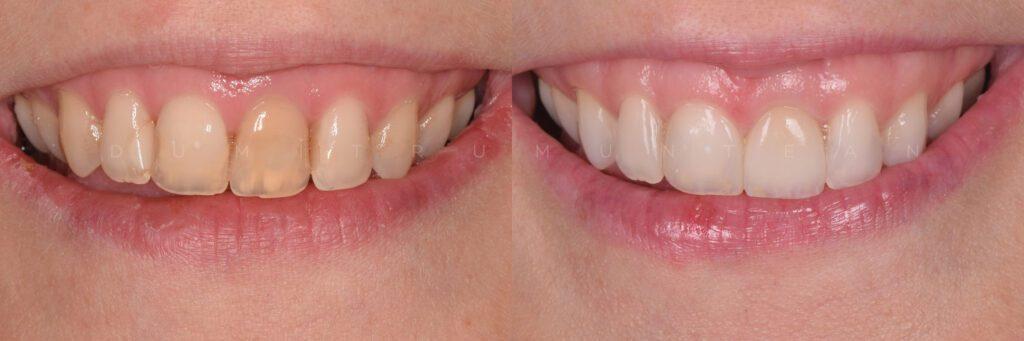 Înainte și după reabilitarea estetică