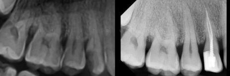 Tratamentul endodontic la microscop într-o singură ședință!